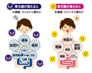 腸内環境が悪化すると免疫力が低下!心と体を健康にする腸内の善玉菌を増やす5つの食品とは!?