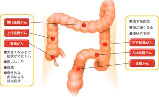 ガンの死亡原因のトップは大腸がん!なぜ大腸がんを罹患する人が増えているのか!?