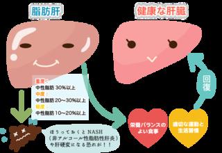 脂肪肝はお酒より肥満(メタボ)が原因の方が怖い!そのまま放置すると肝臓がんになる可能性がある!?
