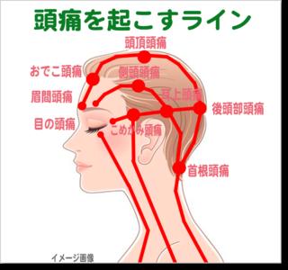 痛みが激しい頭痛でも「 あっ 」という間に治る超簡単ストレッチ!これでだめなら今すぐ医療機関の受診をオススメします!